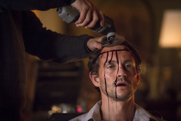 "HANNIBAL -- ""Dolce"" Episode 306 -- (Photo by: Ian Watson/NBC)"